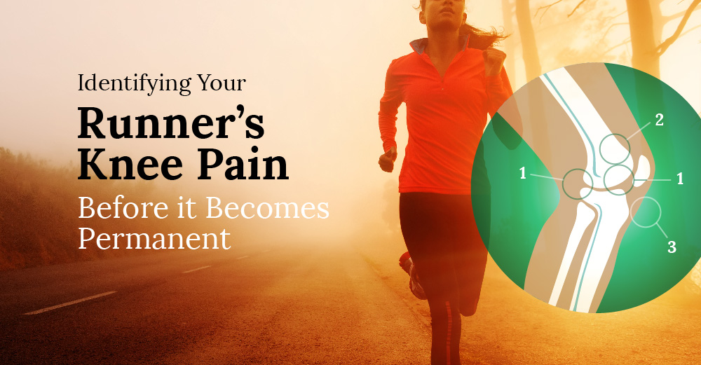 Runner's Guide to Identifying Your Knee Pain And When to See a Doctor